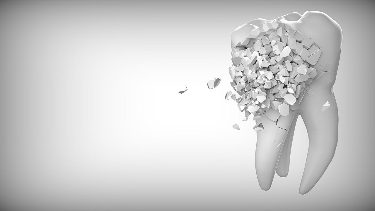 L'alternativa als implants dentals